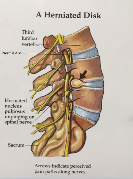 herniated disc (cervical, thoracic, & lumbar) - spinecare medical, Cephalic Vein
