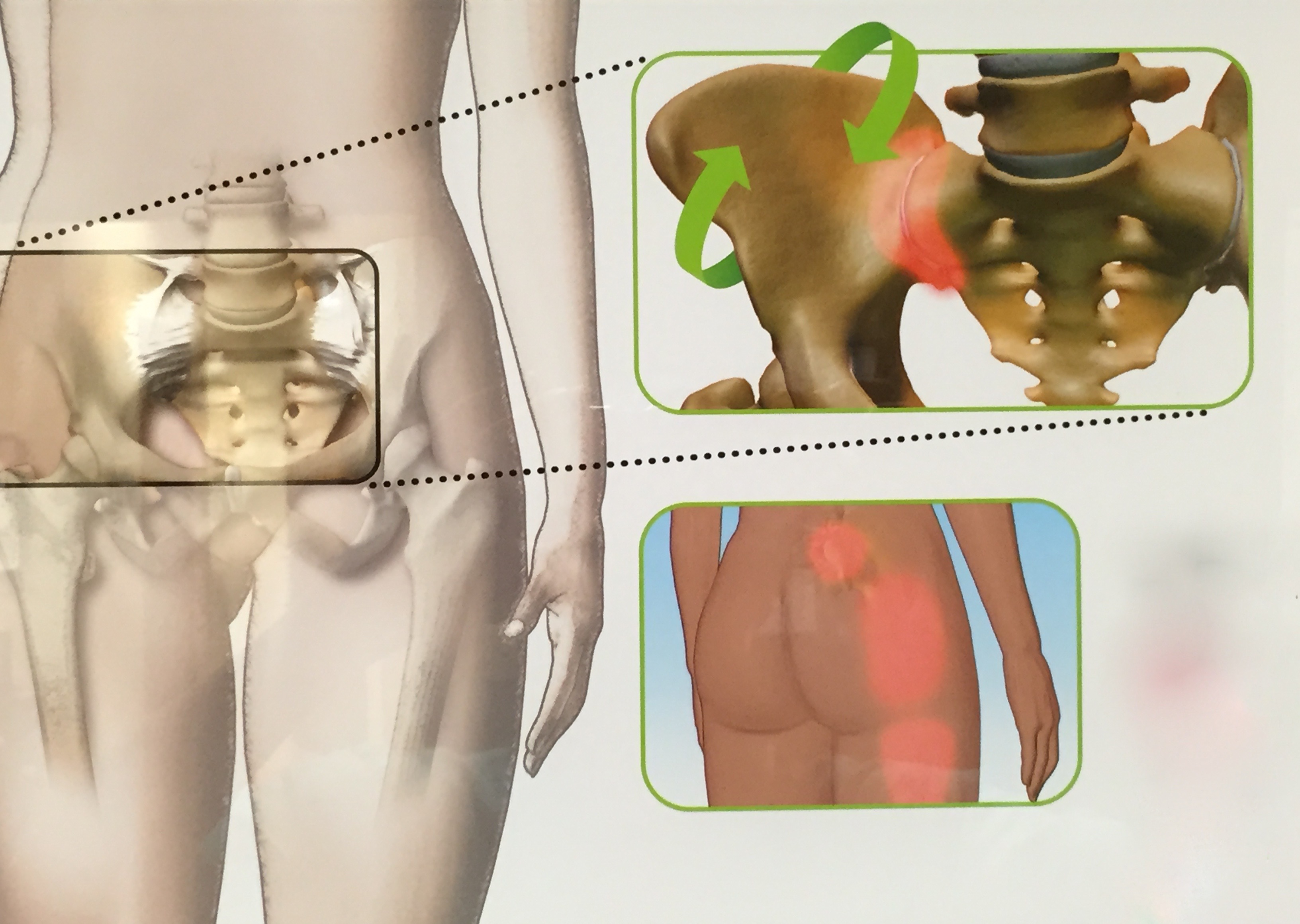 Sacroiliac (SI) Joint Disorders - Spinecare Medical Group