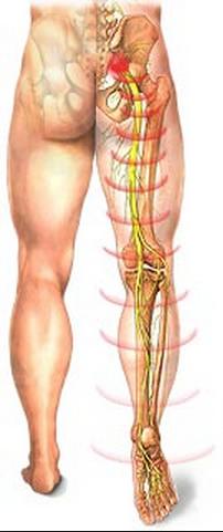 Как лечить онемение ног при грыже позвоночника