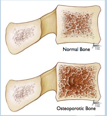 Osteoporosis Amp Osteoporotic Fractures Spinecare Medical