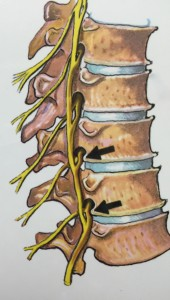 Spinal Stenosis Amp Pinched Nerves Spinecare Medical Group